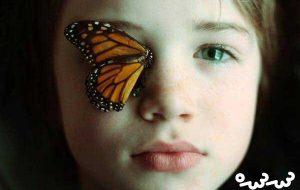 زخم بیماران پروانهای عمیقتر میشود